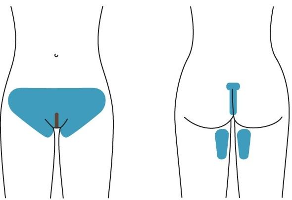 vigina laser